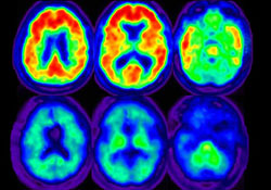 Amyloid Imaging